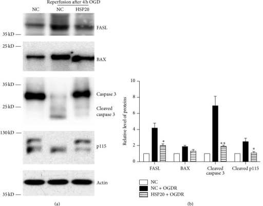 Hsp20 decreases FasL and Bax expression and inhibits caspases 3 and p115 cleavage in N2a cells exposed to OGDR. The experiment was repeated independently for at least three times. (a) Effects of Hsp20 on apoptotic proteins expression and p115 cleavage in N2a Cells treated with OGD 4 h plus 12 h reperfusion. Transfection with Hsp20 decreased FasL and Bax expression and inhibited caspases 3 and p115 cleavage after 12 h reperfusion following 4 h OGD. (b) Quantitation (mean ± SEM) of (a) from three independent experiments. Values are expressed as mean ± SEM. ∗P < 0.05 compared to N2a Cells treated with OGD 4 h plus 12 h reperfusion. ∗∗P < 0.01 compared to N2a Cells treated with OGD 4 h plus 12 h reperfusion.