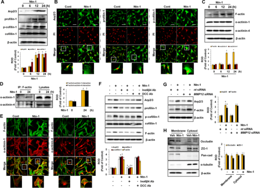 Regulatory effect of Ntn-1on F-actin reorganization of stem cells.(A) The level of Arp2/3, profilin-1, p-cofilin-1, and cofilin-1 in cells treated with Ntn-1 for 24 h is shown. Data represent the mean ± S.E. n = 4. *P < 0.01 vs. 0 h. (B) The increased expressions of Arp2/3 (green, left panel), profilin-1 (green, middle panel) and p-cofilin-1 (green, right panel) were determined by confocal microscopy. Propidium iodide (PI) was used for nuclear counterstaining (red). Scale bars, 100 μm (magnification, x400). n = 3. (C) Time responses of Ntn-1 in expression of F-actin, α-actinin-1, and α-actinin-4 for 24 h are shown. Data represent the mean ± S.E. n = 4. *P < 0.01 vs. 0 h. (D) Co-immunoprecipitation of F-actin with α-actinins is shown (left panel). The level of α-actinin-1 and −4 in total cell lysates is shown in the right panel. Data represent the mean ± S.E. n = 3. *P < 0.05 vs. 0 h. (E) The increased colocalization of F-actin (green) with α-actinin-1 and −4 (red) was determined by confocal microscopy. Scale bars, 100 μm (magnification, x400). n = 3. (F) The level of Arp2/3, profilin-1, p-cofilin-1, cofilin-1, and F-actin in cells pre-treated with DCC-function-blocking antibody and a combination of Inα6- and Inβ4-function-blocking antibodies for 30 min prior to Ntn-1 exposure for 24 h is shown. Data represent the mean ± S.E. n = 4. *P < 0.01 vs. vehicle. #P < 0.01 vs. Ntn-1 alone. (G) The effect of Ntn-1 on the amount of Arp2/3 and F-actin in cells transfected with MMP12siRNA is shown. Data represent the mean ± S.E. n = 4. *P < 0.01 vs. nt siRNA. (H) The level of Occludin and ZO-1 presented in membrane and cytosol fraction in cells treated with Ntn-1 for 24 h was determined by Western blot analysis. Pan-cadherin and α-tubulin were used as internal controls for plasma membrane and cytosol, respectively. Data represent the mean ± S.E. n = 4. (A–D,F–H) ROD is the abbreviation for relative optical density.