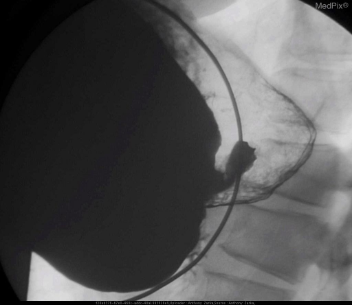 Markedly distended stomach with poorly opening pylorus and delayed transit of contrast into duodenum