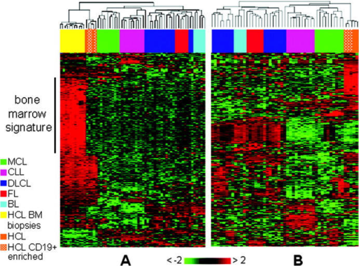 Unsupervised hierarchical clustering of gene expression profiles generated from HCL, non-Hodgkin lymphomas, and B-CLL. Unsupervised analysis was performed on 16 HCL samples obtained from 14 different patients as follows: 11 samples are BM biopsies (HCL BM biopsies) and 5 samples (HCL) are from different origins, including 3 samples of CD19+ purified cells from peripheral blood (for two of them, the BM biopsy is also depicted), 1 sample of mononucleated cells from peripheral blood, and 1 sample of spleen biopsy. The representative panel of B cell malignancies includes 6 cases of follicular lymphoma (FL), 4 cases of Burkitt lymphoma (BL), 16 cases of diffuse large B cell lymphoma (DLBCL), 10 cases of mantle cell lymphoma (MCL), and 10 cases of B cell chronic lymphocytic leukemia (B-CLL). The dendrograms are generated using a hierarchical clustering algorithm based on the average-linkage method. In the matrix, each column represents a sample and each row represents a gene. The color scale bar shows the relative gene expression changes normalized by the standard deviation (0 is the mean expression level of a given gene). (A) The 62 tumor samples (16 HCL, 6 FL, 4 BL, 16 DLBCL, 10 MCL, and 10 B-CLL) are clustered according to their expression of 382 genes. (bone marrow signature) Genes specifically associated to the BM biopsies. (B) The HCL BM biopsies are not included in this analysis. The samples are clustered according to their expression of 389 genes.