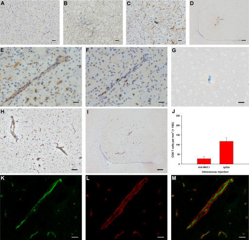 The role of endothelial MHC class I in antigen-specific CD8 T cell infiltration into the brain. (A–F) Immunohistochemistry (brown) for MHC class I (A–E) and CD8 (F) in naive striatum (A) and striatum from CL4 mice injected with Cw3 (B) or HA (C–F). E and F show serial sections. (G–I) Immunohistochemistry (brown) for biotinylated IgG 3 d after intrastriatal HA injection (day 0) in CL4 mice receiving i.v. biotinylated anti–MHC class I antibody (H and I) or control biotinylated IgG (G) on day 2. (J) CL4 mice injected with HA intrastriatally received an i.v. bolus of blocking anti–MHC class I antibody or control IgG on day 2 and were perfused on day 3. There was a 76% reduction (95% CI = −139.5 to −40.0) in CD8 T cell infiltration (two-tailed Student's t test, P = 0.002). (K–M) High power confocal micrographs after double immunofluorescence on striatum for biotin (green in K) and γ1-laminin (red in L) (merged in M) 3 d after intrastriatal HA injection (day 0) in CL4 mice receiving i.v. biotinylated anti–MHC class I antibody on day 2. Bars: K–M, 10 μm; E and F, 30 μm; A–C, 50 μm; G and H, 100 μm; D and I, 200 μm.