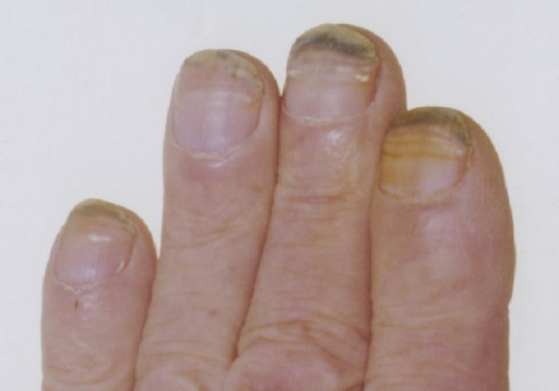 accutane nail changes