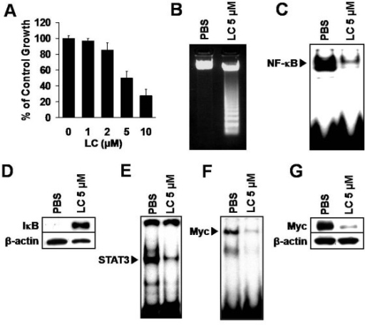 NF-κB inhibition suppresses growth, causes apoptosis and downregulates STAT3 and Myc activity in iMycEμ-1 cells. (A) MTS/PMS cell proliferation assay, after culture with the NF-kB inhibitor lactacystin (LC) at various concentrations as indicated. Data were normalized to vehicle control, and error bars represent the standard deviation from a representative experiment performed in triplicate. (B) Agarose gel showing DNA fragmentation in sample treated with LC, but not in PBS control. (C) EMSA showing reduced NF-κB DNA-binding after LC treatment. (D) Stabilization of IκB protein after treatment with LC, as determined by Western blotting. (E) Reduced STAT3 DNA-binding activity after NF-κB inhibition, as observed by EMSA. (F) EMSA showing that Myc DNA-binding activity is reduced after LC treatment. (G) Western blot showing that Myc protein levels are reduced after NF-κB inhibition. β-actin was used as a loading control for Western blots. All LC incubations were for 24 hours.