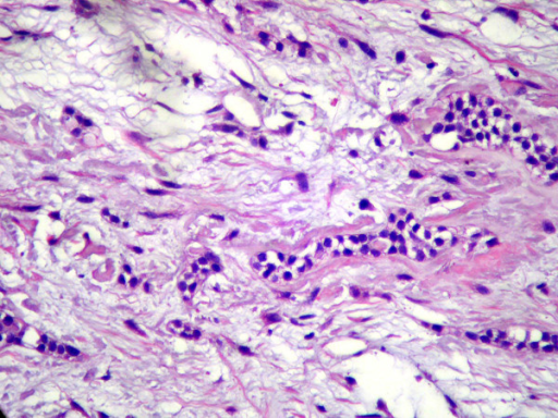 Microscopic view demonstrating a lesion constituted by fibrous connective tissue and abundant nests and strands of inactive-looking OE usually surrounded by basophilic extra-cellular substance (1000×, hematoxilin-eosin).