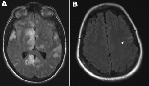 Magnetic resonance imaging scans of the brains of 2 patients with Hendra virus encephalitis, Australia, 2008. A) Patient 1 on day 18 of illness, showing cortical and subcortical hyperintense foci. B) Patient 2 on day 25 of illness, showing hyperintense foci in the left precentral gyrus (arrowhead).