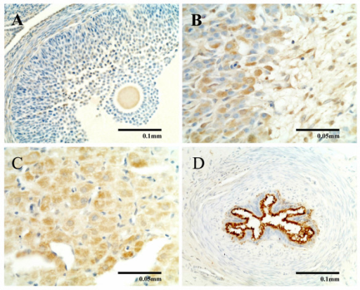 Immunocytochemical study of ADM in rat ovary and oviduct. Immunocytochemical study of ADM in the ovary (A, B, C) and oviduct (D) showing positive ADM immunostaining in the follicles (A) and corpora lutea (B). Intense ADM immunostaining was found at the centre of some corpora lutea from late pregnant rats (C) and oviduct (D).
