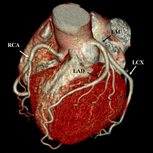 Volume rendering image shows the branches of coronary artery. LM: left main; LAD: left anterior descending; LCX: left circumflex; RCA: right coronary artery.