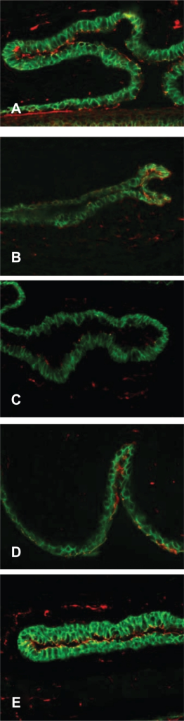 Labeling of tight junctional proteins in conjunctiva. Immunofluorescent staining of ZO-1 (red) and E-cadherins (green) in tissue sections from five treatment groups. A) No sensitization, no challenge (naïve animals); B) Sensitized, challenged; C) Sensitized, challenged, drug vehicle only; D) Sensitized, challenged, 0.1% topical olopatadine; E) Sensitized, challenged, 0.025% topical alcaftadine. Note decreased staining in sensitized, challenged animals without drug treatment (B and C).