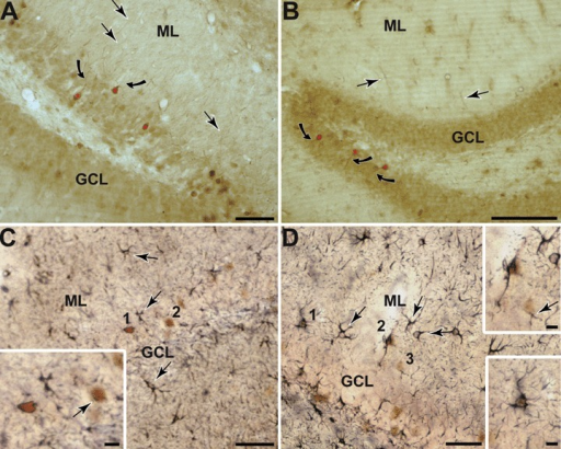 Photomicrographs showing Arc protein expression throughout the dentate gyrus in both, rat (A) and mice (B). Arc protein is present in the granule cells (red asterisks) as well as targeted to their proximal dendrites (curved arrows) and other scattered processes throughout the ML (arrows). C-D: Photomicrographs showing dentate gyrus GFAP and Arg3.1/Arc. Immunogold labelling for GFAP in round (C 1 and 2) and stellate cells (D 1-3) that also show brown peroxidase reaction product identifying Arg3.1/Arc (C and D boxed regions). Gold GFAP labelling is also seen in numerous cells and processes within the different layers of the DG (arrows), which is without Arg3.1/Arc peroxidase reaction product. Scale bars = 100 μm in A and B, 50 μm in C and D and 10 μm in insets.