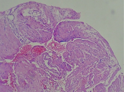 Photomicrograph of Splenic Artery Wall Section Stained with Hematoxylin and Eosin