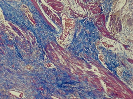Photomicrograph of Splenic Artery Wall Section Stained with Trichrome Stain