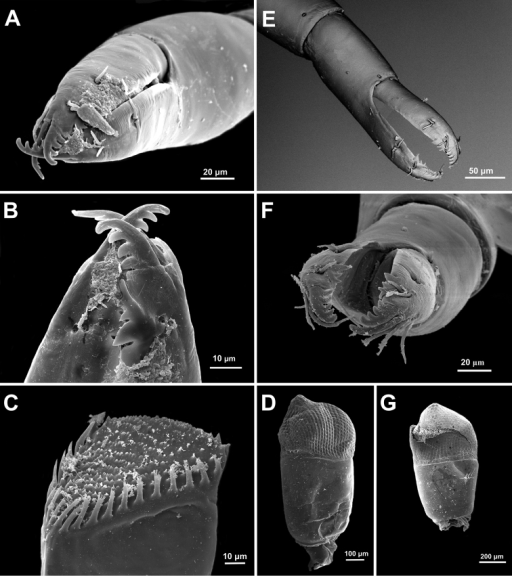 Anachlorocurtis occidentalis sp. n., ovigerous female paratype, PoCL 3.1 mm (UO Aq09-30A). A second pereiopod chela B same, tips of fingers C mandible, molar process, antero-mesial aspect (from side of incisor process) D eye. Anachlorocurtis commensalis Hayashi, 1975, ovigerous female PoCL 2.5 mm (UO Tw12-79) E second pereiopod chela F same, tips of fingers G eye.