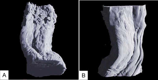 (A) 3D image of esophageal carcinoma: the esophageal wall shape becames irregular shaped, and the surface of the mucosa is rugose. (B) The muscular layer is not penetrated by cancer, so the surface of the muscular layer remains smooth.