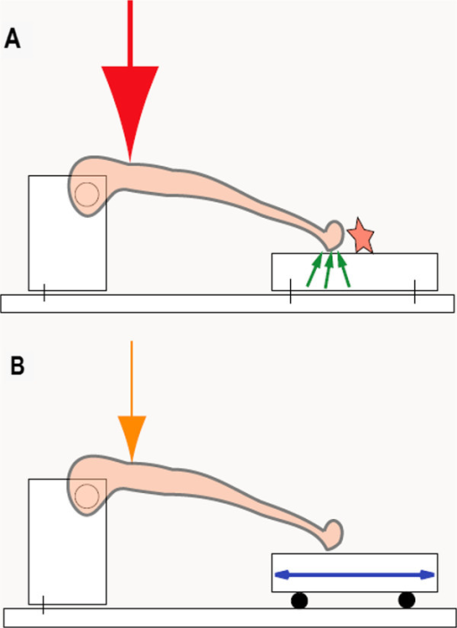 Concept of the interaction of frictional forces and strength application needed for bending/breaking the tibia metaphysis. Both constructions are designed to provide surface contact for the tibia at the same height. A) Frictional forces are created (small green arrows) when, through the axial lengthening of the tibia diaphysis, the distal tibia moves across the metal plate (star) and thus a larger force for bending/breaking is needed (large red arrow). B) Frictional forces are eliminated through the mobile, ball-mounted platform (blue double arrow) and less force is needed (orange arrow) to bend/break the tibia metaphysis.
