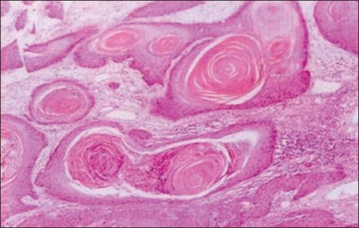 Photomicrograph showing grade 1 keratinization of OSCC according to Anneroth et al., criteria (H&E stain, ×50)