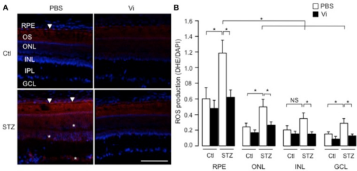 Vasoinhibins reduce the retinal levels of ROS in streptozotocin-induced diabetic rats. (A) Representative images of superoxide anion production stained with dihydroethidium (DHE) on retina sections from control (Ctl) rats intravitreously injected with PBS or vasoinhibins (Vi, 1 μM) for 24 h and from streptozotocin (STZ)-induced diabetic rats intravitreously injected with PBS or Vi 24 h before the end of the 4 weeks of diabetes. Scale bar is 100 μm. (B) Fluorescence intensity of superoxide anion quantified as mean number of pixels positive for DHE staining normalized to the mean number of pixels positive for DAPI staining in the retinal pigment epithelium (RPE), outer nuclear (ONL), inner nuclear (INL), inner plexiform (IPL), and ganglion cell (GCL) layers. Data are mean ± s.e.m. of values obtained from 3 rats in each group. *P < 0.05. NS, not significant.