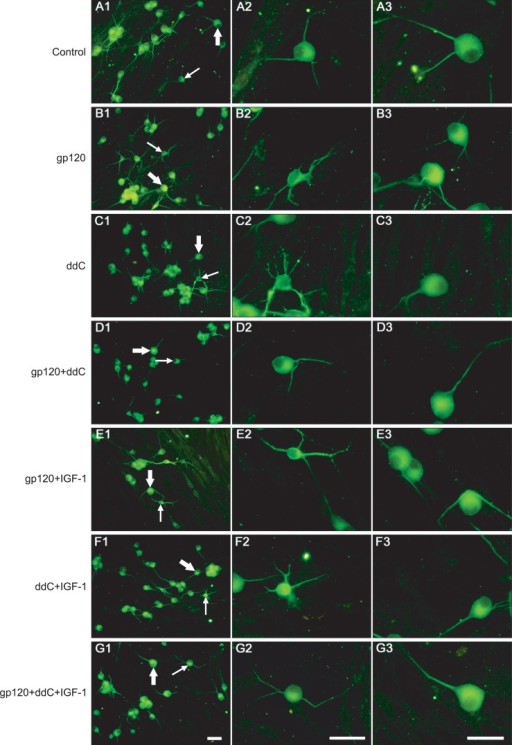Neurite outgrowth in different experimental conditions. Panel A: control; Panel B: gp120 (500 pmol/L); Panel C: ddC (50 μmol/L); Panel D: gp120 (500 pmol/L)+ddC (50 μmol/L); Panel E: gp120 (500 pmol/L)+IGF-1 (20 nmol/L); Panel F: ddC (50 μmol/L)+IGF-1 (20 nmol/L); Panel G: gp120 (500 pmol/L)+ddC (50 μmol/L)+IGF-1 (20 nmol/L). A2-G2 are enlargements of small neurons in A1-G1 with thin arrows. A3-G3 are enlargements of large neurons in A1-G1 with thick arrows. Scale bar=50 μm.