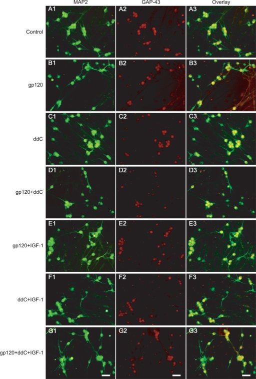 Double fluorescent labeling of MAP2 and GAP-43 of DRG neurons treatment with different agents. Panel A (control): A1, MAP2-IR neurons; A2, GAP-43-IR neurons; A3, overlay of A1 and A2. Panel B (500 pmol/L gp120): B1, MAP2-IR neurons; B2, GAP-43-IR neurons; B3, overlay of B1 and B2. Panel C (50 μmol/L ddC): C1, MAP2-IR neurons; C2, GAP-43-IR neurons; C3, overlay of C1 and C2. Panel D (500 pmol/L gp120+50 μmol/L ddC): D1, MAP2-IR neurons; D2, GAP-43-IR neurons; D3, overlay of D1 and D2. Panel E (500 pmol/L gp120+IGF-1): E1, MAP2-IR neurons; E2, GAP-43-IR neurons; E3, overlay of E1 and E2. Panel F (50 μmol/L ddC+IGF-1): F1, MAP2-IR neurons; F2, GAP-43-IR neurons; F3, overlay of F1 and F2. Panel G (500 pmol/L gp120+50 μmol/L ddC+IGF-1): G1, MAP2-IR neurons; G2, GAP-43-IR neurons; G3, overlay of G1 and G2. Scale bar=50 μm.