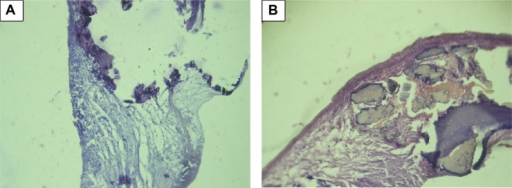 Macroscopic calcification of bioprosthetic leaflet samples, stained with hematoxylin-eosin, with original magnification ×100. The two figures (A and B) show the morphology of calcification.