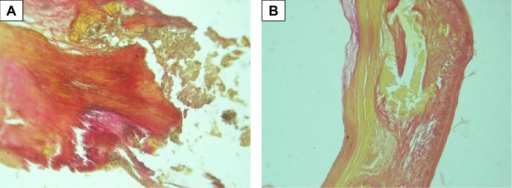 Macroscopic calcification of bioprosthetic leaflet samples, stained with Van Gison, with original magnification ×100. The two panels (A and B) show the morphology of calcification.