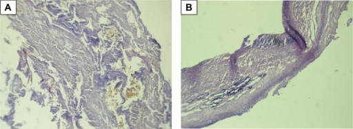 Micro-samples of bioprosthetic leaflet with endocarditis, stained with hematoxylin-eosin. Leuko-, lymphocytic infiltrates are visualized. Original magnification ×100. The two panels (A and B) show the morphology of calcification.