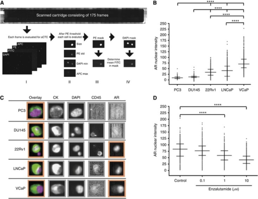 Assay development for the AR marker using the CellSearch system. (A) Mean AR intensity was determined by automated image analysis. Each frame was evaluated for CTC using a global CK-PE threshold (I). After classification (II), the mean AR-FITC intensity was determined inside the Cytoplasm (III) and Nucleus (IV). (B) Prostate cancer cell lines were spiked in healthy volunteer (HV) blood and detected on the CellSearch platform. Median nuclear AR intensity of individual cells±interquartile range (IQR) is plotted. AR nuclear intensity was determined using the automated algorithm. ****P<0.001, One-way ANOVA followed by Dunett's multiple comparison test. (C) Representative images of AR expression in five prostate cancer cell lines detected on the CellSearch platform. PC3 and DU145 cells were used as negative controls and displayed absence of AR expression. 22Rv1, LNCaP and VCaP were used as positive controls. (D) LNCaP cells were grown in RPMI supplemented with 10% FBS and treated with indicated concentrations of enzalutamide or vehicle (DMSO 0.2%) for 24 h before spiking in HV blood. Cells were then isolated and detected on the CellSearch platform. AR nuclear intensity was evaluated using the automated algorithm. Median±IQR is showed. ****P<0.001, One-way ANOVA followed by Dunett's multiple comparison test.