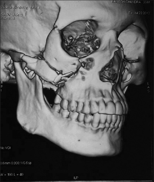 Fracture of the right zygomatic arch and right coronoid process of the mandible