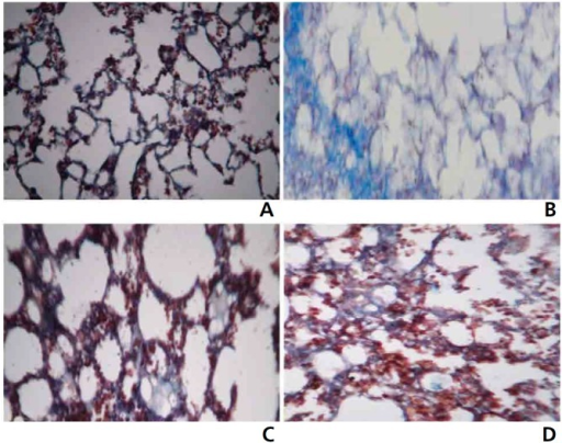 Masson's trichrome staining in the lung for collagen in the control and the experimental groups of animals (40 ×).