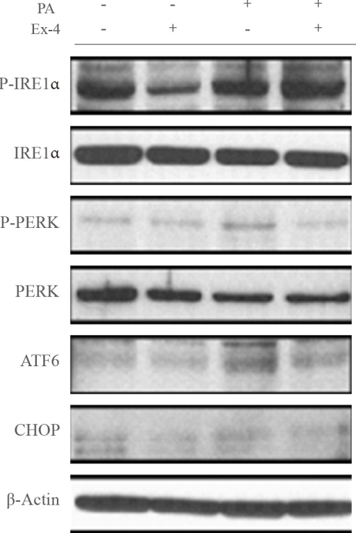 Exendin-4 (Ex-4) reduced the expression of palmitic acid (PA)-induced endoplasmic reticulum stress markers. HepG2 cells were incubated in the presence or absence of PA-containing medium, and treated with or without 100 nM exendin-4 for 24 hours. Protein expression of inositol-requiring enzyme-1α (IRE1α), PKR-like endoplasmic reticulum kinase (PERK), activating transcription factor 6 (ATF6), and CCAAT/enhancer binding homologous protein (CHOP) were analyzed by Western blotting. P-IRE1α, phosphor-IRE1α; P-PERK, phosphor-PERK.