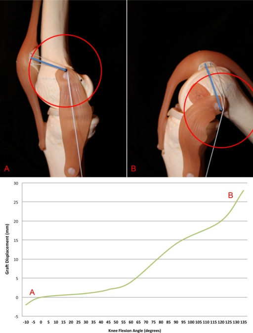 "Sawbones and corresponding graphic depiction of how a poorly placed proximal medial patellofemoral ligament (MPFL) femoral attachment creates too much tension in the graft during knee flexion, as a longer graft would be required to maintain the same amount of tension. The red circle matches the radius of the graft at full extension. The blue line represents the distance from the femoral insertion to the patellar insertion. In other words, if the blue line ends outside of the red circle, then the graft would be too tight. Thus, ""high and tight."""