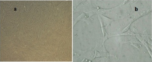 Morphological characteristics of WJ-MSCs. a; Confluent growth of mesenchymal stem cells in passage 4, b; Fibroblast like morphology of WJ-MSCs.
