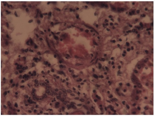 Liver: necrosis and mononuclear cellular infiltration of the liver (He 40x).