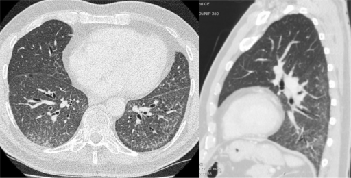 HRCT of the lungs showing diffuse ground glass opacity and fine reticulation with sparing of the immediate subpleural lung tissue on axial and sagittal planes.