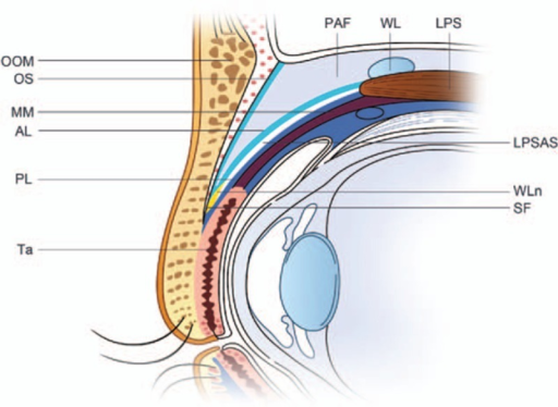 Schematic of upper eyelid anatomy. Anterior/posterior layer of the levator palpebrae superioris aponeurosis. LPS = levator palpebrae superioris, LPSAS = levator palpebrae superioris aponeurosis space, MM = Müller muscle, OOM = orbicularis oculi muscle, OS = orbital septum, PAF = preaponeurotic fat, SF = superficial fascia, Ta = tarsal plate, WL = Whitnall ligament, WLn = white line.