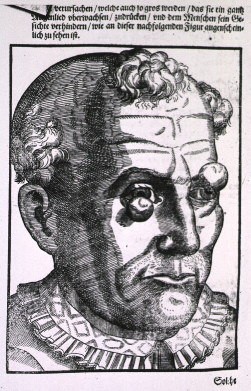 <p>Close-up of the head of a man showing tumorous growths on the eyelids.</p>