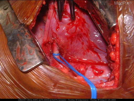 Intraoperative photograph. Left thoracotomy with large artery supplying sequestration isolated (surrounded by blue vascular loops).