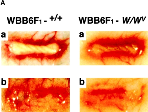 Comparison of granulation tissue formation between WBB6F1+/+ and WBB6F1-W/WV mice. A cotton thread (1 cm, 7 mg) was implanted subcutaneously in the dorsum of each mouse. The mice were killed 5 d after the cotton thread implantation. (A) The vascular network formation around the cotton thread (a) and the subcutaneous tissue beneath the cotton thread (b). (B) The granulation tissue weight and hemoglobin levels in the granulation tissue. (C) VEGF protein levels in the granulation tissue. VEGF protein levels in the granulation tissue were determined by immunoblotting and analyzed densitometrically. Representative immunoblots from two mice in each group are shown at the top of C. The mean VEGF protein level in the granulation tissue of WBB6F1+/+ mice is set to 1.0. Values are the means from five mice with SEM shown by vertical bars.