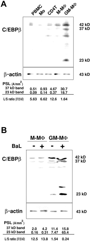 Immunoblot analysis of C/EBPβ in M-MΦ and GM-MΦ. (A) Immunoblots of C/EBPβ protein in PBMC, PHA-activated CD4+ T cells, Mo, and Mo-derived MΦs. (B) Immunoblots of C/EBPβ protein in HIV-1BaL–infected M-MΦ and GM-MΦ at 2 d PI. The relative amounts of the large band to the small band (L/S ratio) of C/EBPβ were calculated using PSL values of 37 kD and 23 kD of C/EBPβ isoforms. The data shown here are representative one of three independent experiments.