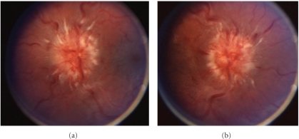 Optic disc appearance, case 2. Fundoscopy of the left eye (a) and right eye (b) reveals grade IV papilledema as evidenced by severe elevation and hemorrhages.