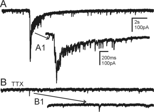 Action potential dependence of epileptiform EPSC bursts.A. Spontaneous burst activity recorded from a granule cell in a pilocarpine-treated mouse that survived SE. B. The bursts were completely blocked by TTX (1 µM), indicating they were action potential-dependent. Action potential-independent mEPSCs were still seen in the presence of TTX. A1 and B1 are expanded segments of A and B respectively. The recordings were made in the absence of Mg2+ and presence of bicuculline (30 µM).
