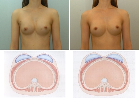 Complications 4 months after breast augmentation