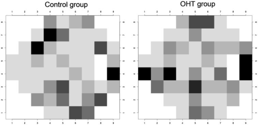 Point-wise correlation between Humphrey-SAP and Matrix-FDT in ocular hypertensive subjects (right) and healthy control subjects (left).Highly correlated visual field locations are demonstrated in black (r = 0.45 in patients and r = 0.46 in healthy subjects, p<0.01), less correlated locations are demonstrated in decreasing grey scales (r = 0.42 in both groups, p<0.02/r = 0.36 in both groups, p<0.05/r = 0.30 and r = 0.31, p<0.10/r = 0.24 in both groups, p<0.2/r = 0.16 in both groups, p<0.4).