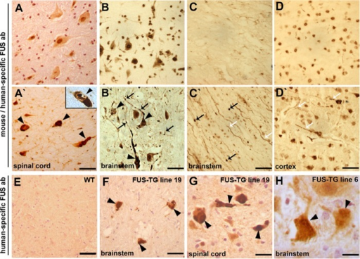 Proteinopathy in the nervous system of FUS-TG mice.A–H, paraffin sections were stained with an antibody (ab) recognizing an N-terminal epitope in both mouse and human FUS (A–D, A′–D′) or antibody 1480 specific to human protein (E–H). Multiple intracellular FUS-positive inclusions were revealed in the cytoplasm (arrowheads), nucleus (inset), and axons (arrows) of spinal cord (A′) and brainstem (B′) neurons of symptomatic FUS-TG but not of non-transgenic littermate (A and B, respectively) mice. Similar inclusions were detected in the brainstem (F) and spinal cord (G) of transgenic mice using human FUS-specific antibody. Truncated FUS accumulates in axons (white arrows) and forms spheroids (black arrows) in brainstem tracts of symptomatic FUS-TG (C′) but not of non-transgenic littermate (C) mice. In cortical neurons of symptomatic FUS-TG mice (D′), FUS accumulates and forms inclusions in cell bodies (black arrows) and neurites (white arrows), whereas in non-transgenic littermates, endogenous FUS is confined to cell nuclei (D). E, staining of a spinal cord section from a non-transgenic animal shows that human FUS-specific antibody 1480 does not react with mouse FUS protein. H, FUS-positive inclusions (arrowheads) are occasionally detected in neurons of 9-month-old transgenic mice of low-expressing line 6. Scale bars: A–F, 50 μm; G, 30 μm; H, 15 μm.