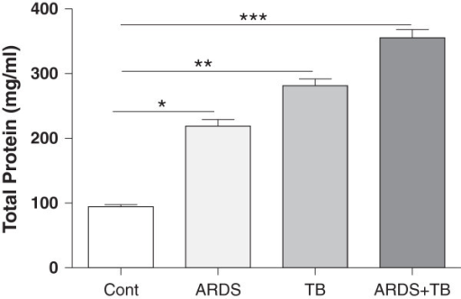 The total protein content of bronchoalveolar lavage (BAL) of patients with tuberculosis (TB), acute respiratory distress syndrome (ARDS) and the combination of both TB and ARDS. After obtaining the BAL fluids from TB, ARDS and combination, the levels of total protein was determined as described at materials and methods. Data are presented as mean ± SEM (n = 30 in each group except for controls where n = 20). *p ≤ 0.05, **p ≤ 0.01 and ***p ≤ 0.01 compared with control.