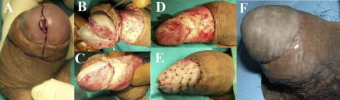 Glans skinning and glans resurfacing: SCC involving the glans and coronal sulcus (A). The glans epithelium is removed together with the distal foreskin (B–D). The skin graft is sutured and quilted over the stripped glans (E). Penile appearance 6 months after surgery (F).