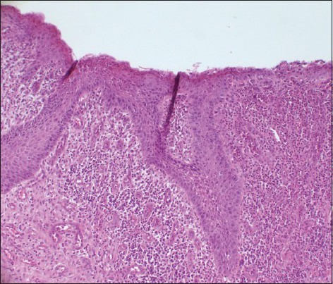 The photomicrograph shows DF lined with squamous epithelium. Squamous proliferation is obvious in dental follicle (DF). The connective tissue is fibrous with inflammatory cells (H&E stain, ×100)