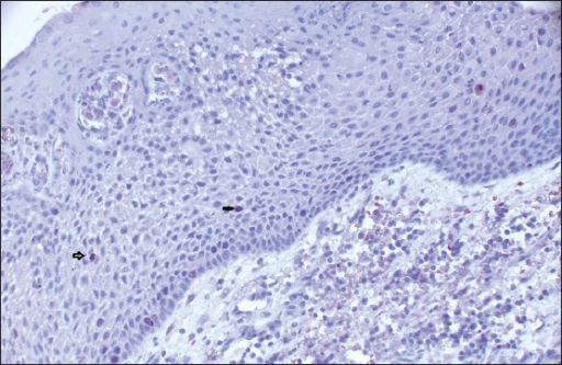 The photomicrograph shows the distribution of Ki-67-positive cells in Group 1. Ki-67-positive cells were mainly confined to the basal location. The positive cells were rarely observed on supra-basal layer (IHC stain, ×100)