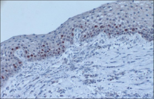 The photomicrograph shows the distribution of Ki-67-positive cells in Group 2. Ki-67-positive nuclei were confined to both basal and supra-basal portions of the epithelium and were more than those in control group (IHC stain, ×100)