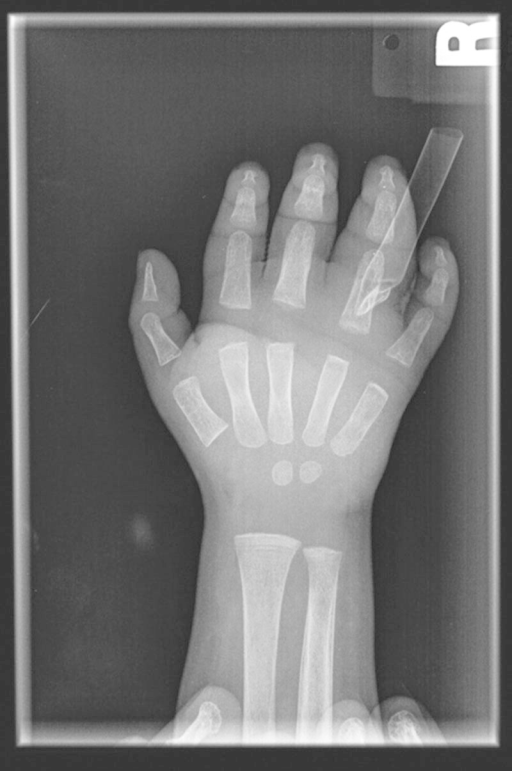 Initial posterior-anterior radiograph of the hand following incision and drainage and placement of penrose drain, without reactive changes to the metacarpal and phalanges of the ring finger.