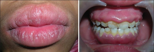 Preoperative photograph showing upper and lower lip swelling and maxillary and mandibular anterior gingival enlargement